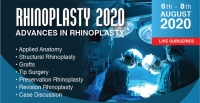 Rhinoplasty 2020-Advances in Rhinoplasty
